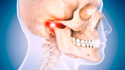 Illustration of Jaw Problems Are Shifting?