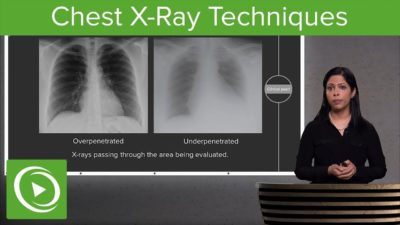 Illustration of Lung X-ray Examination Results And Easy To Catch A Cold?