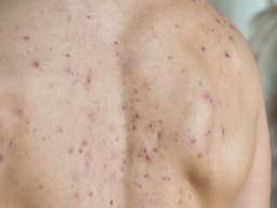 Illustration of Small Pimples On The Back Due To Excessive Consumption Of Methylprednisolone?