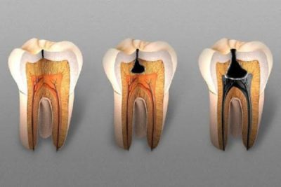 Illustration of Handling Cavities, Patched Or Revoked?