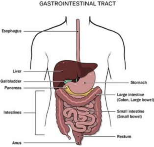 Illustration of Inflammatory Disease In The Gastrointestinal Tract Of The Stomach To The Large Intestine.?
