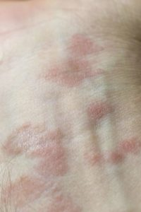 Illustration of Symptoms Of Swelling, Bumps, Itching Whether Allergic?