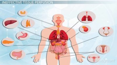 Illustration of Prevention Of The Risk Of Decreased Peripheral Tissue Perfusion In Hypertension?
