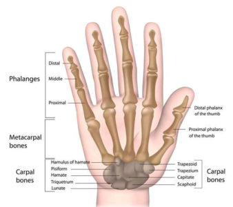 Illustration of Handling Of The Sprained Hand?