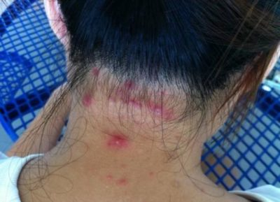 Illustration of Causes Of Bumps On The Head?