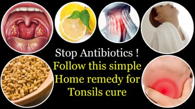 Illustration of How To Cure Tonsils Naturally?