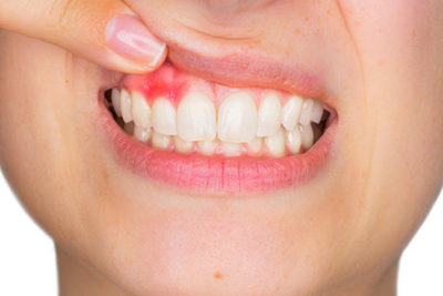 Illustration of Can Gums That Have Undergone Shrinkage Come Back Again?