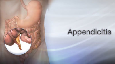 Illustration of Often Chapters After Appendectomy?