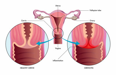 Illustration of Management Of A Swollen And Reddened Cervix?