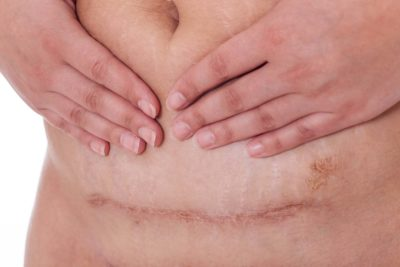 Illustration of Management Of Post-Caesarean Wounds That Have Not Yet Dried?