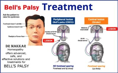 Illustration of Treatment For Bell's Palsy?