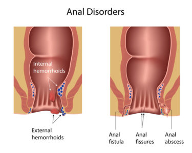 Illustration of Hemorrhoids Never Heal And The Anus Begins To Smell Unpleasant.?