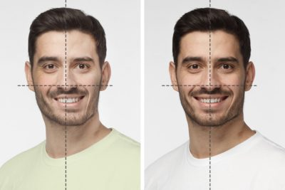 Illustration of No Asymmetry On The Face.?