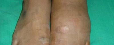 Illustration of Concave Skin Area Near The Ankles Feels Hot For No Reason.?