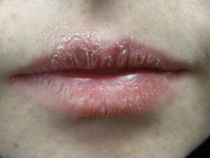 Illustration of Lips Scaly And Thickened.?
