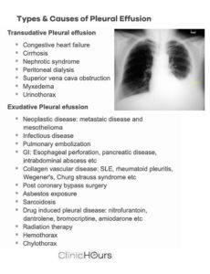 Illustration of Causes Of Pleural Effusion.?