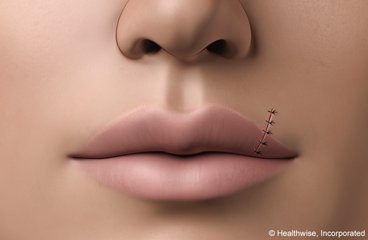 Illustration of How Do You Treat The Stitches On The Lips?
