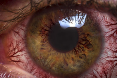 Illustration of Right Eye Red, Itchy, And Watery?