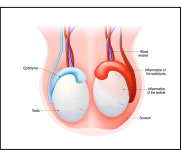 Illustration of Lumps And Pain After Vacectomy Surgery.?
