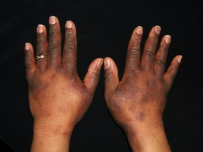 Illustration of Itching On The Hands And Neck That Never Heals.?