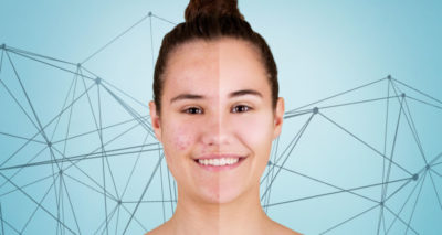 Illustration of Handling Of Pimples That Disappear Arise On The Face.?