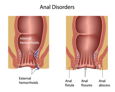 Illustration of Swollen Anal Lips During Bowel Movements.?