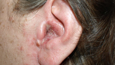 Illustration of Treatment For Lumps In The Ear.?