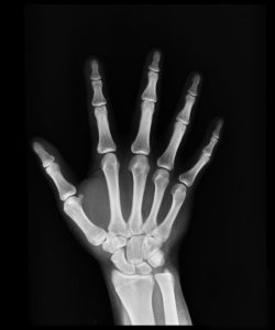 Illustration of Can Pain In The Fingers Be Identified By Xray?