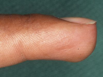 Illustration of Tumor On The Tip Of The Index Finger.?