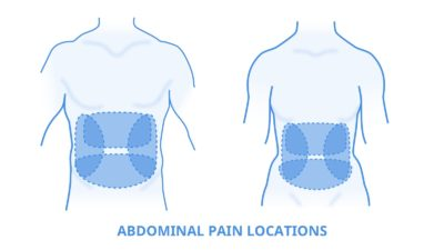 Illustration of Pain In The Middle, Lower, Right, And Left Abdomen Accompanied By Vomiting.?