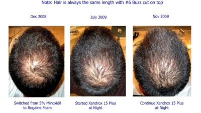 Illustration of Side Effects Of Using Minoxidil On Hair.?