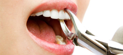 Illustration of Is It Dangerous To Pull Out Healthy Teeth?