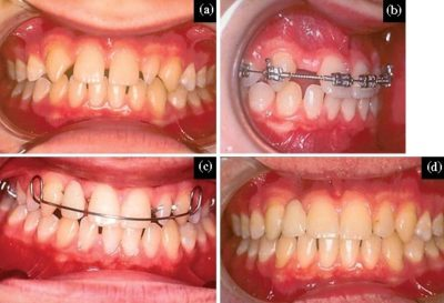 Illustration of The Use Of Braces To Overcome Tenuous Teeth?