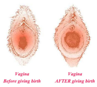 Illustration of How To Close The Vagina After Giving Birth?