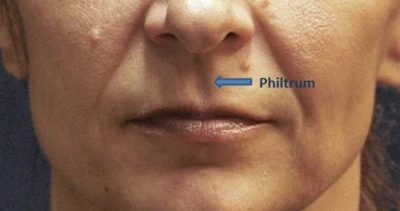 Illustration of Treatment For Defects In Philtrum From Birth?