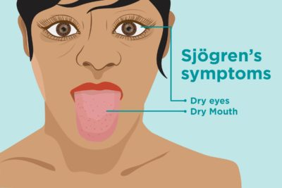 Illustration of Dry Mouth With Palpitations?