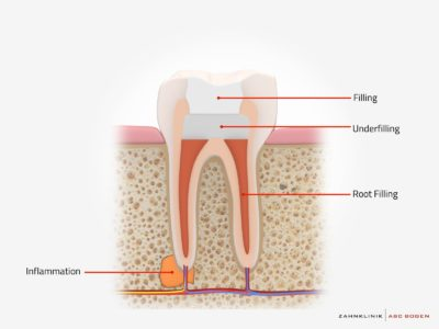 Illustration of Special Abstinence Related To Root Canal Treatment Measures,?
