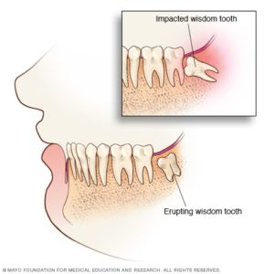 Illustration of Dental Molars With Pain?