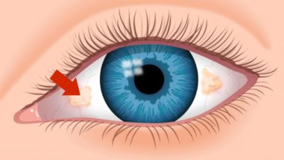 Illustration of The Cause Of The Right Eye Appears Yellowish Red Spots?