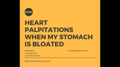 Illustration of Heart Palpitations Accompanied By Bloating And Hard Stomach.?