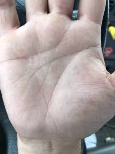 Illustration of There Are Red Spots On The Palms.?