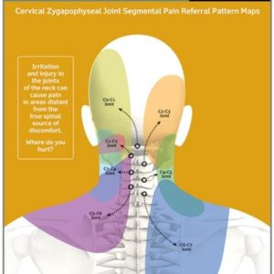Illustration of Neck Pain Due To Blows.?