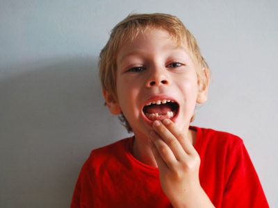 Illustration of Can Broken Teeth Grow At The Age Of 12 Years.?