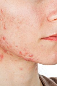 Illustration of Sore Throat And Freckles Appear Like Zits.?