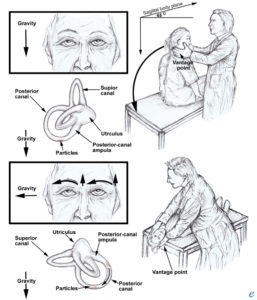 Illustration of Causes Of Vertigo And How To Treat When Relapsing?