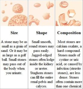 Illustration of Difference In Urinary Stones Or Kidney Stones?