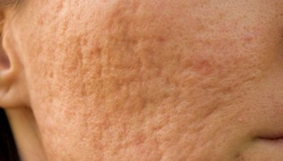 Illustration of Pockmarked From Acne Injections, Can It Return To Normal?