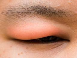 Illustration of Swollen And Red Eyelids?