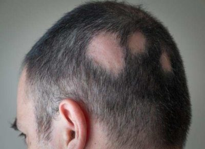 Illustration of Hair Loss To The Head Almost Bald?