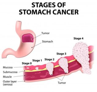 Illustration of The Possibility Of Stage 2 Gastric Cancer Can Be Completely Cured?